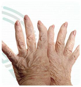 rebeka-paulo-doencas-artrite-reumatoide-thumb