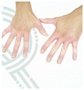 rebeka-paulo-doencas-esclerodermia-thumb