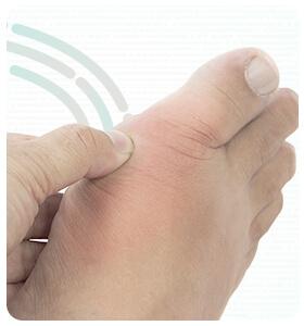 rebeka-paulo-doencas-gota-thumb