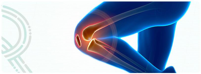 Imagem | Osteoartrite (Artroses)
