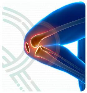 rebeka-paulo-doencas-osteoartrite-thumb